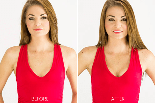 Upbra before and after for small breasts